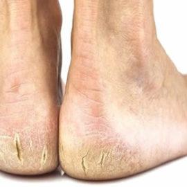 Como tratar rachaduras nos pés?