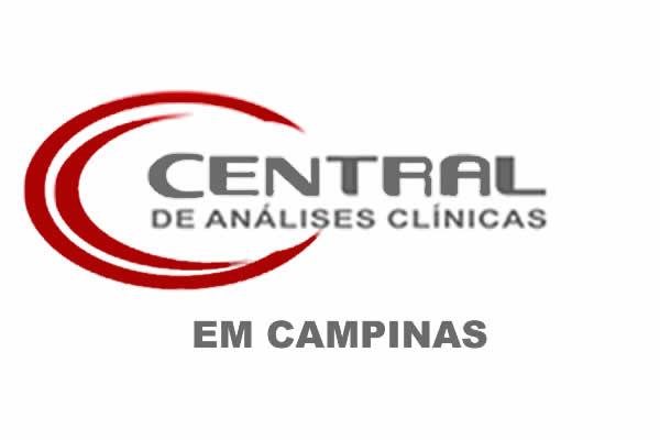 Convênios com Central de Análises Clínicas em Campinas