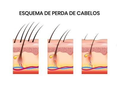 Esquema de perda de cabelos